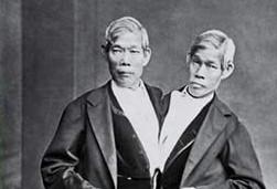 התאומים בנקר