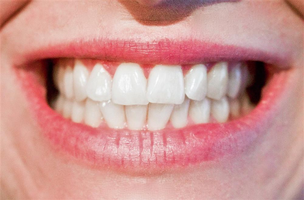 אשה מחייכת בשיניים חשופות