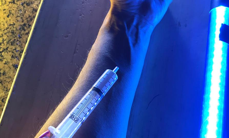 Dark Lights - Junkie Arm Close-Up Insert Shot