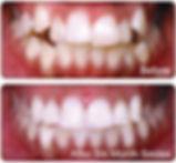Six Month Smiles Castleblayney