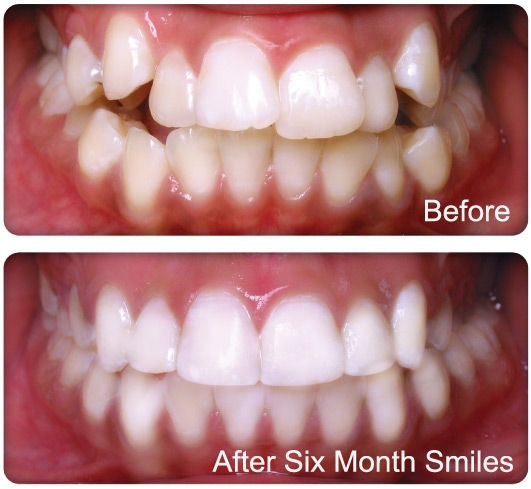 Six Month Smiles Castleblayney