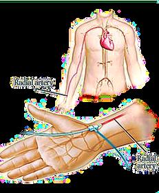 wrist radial artery angiogram.png