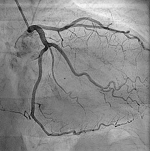 angiogram.jpg