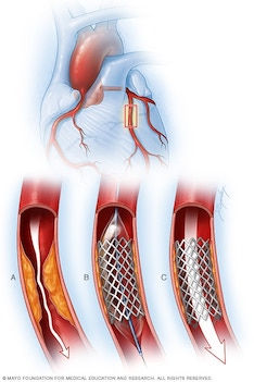 coronary angioplasty.jpg