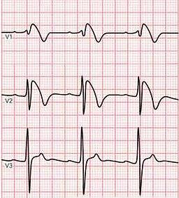 Brugada_syndrome_ECG.jpg