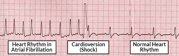 cardioversion-DCR.png