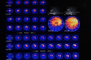Myocardial perfusion scan imaging MPI Ho