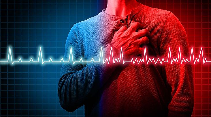 myocardial_infarction1.jpg