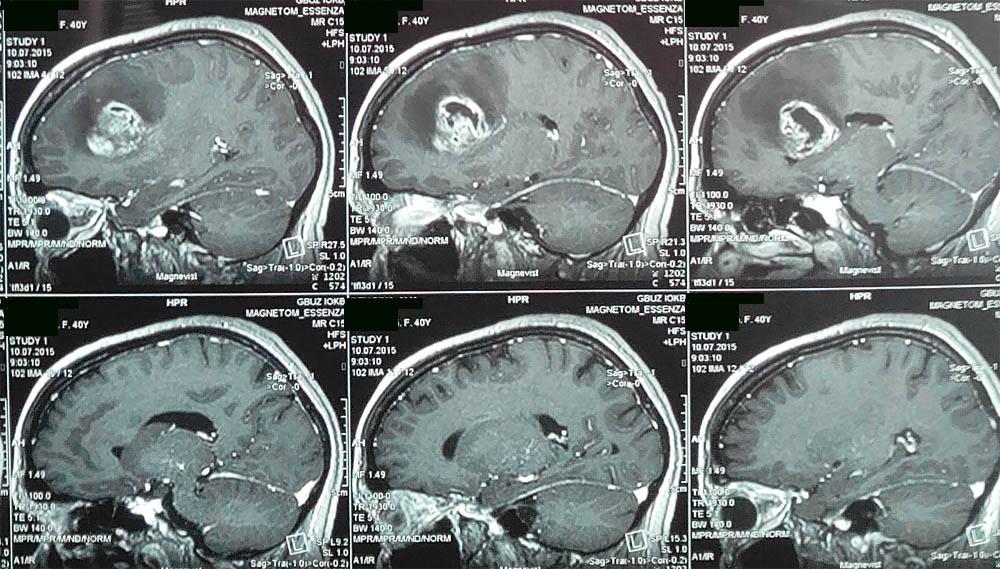 предоперационная МРТ головного мозга
