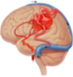 функциональная нейрохирургия