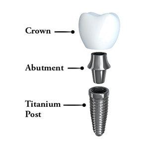 anatomy-of-a-dental-implant.jpg