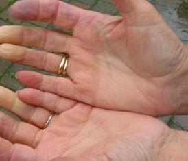Scleroderma2.jpg