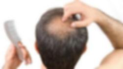 20140826_162241_rambut-rontok-dan-kebota