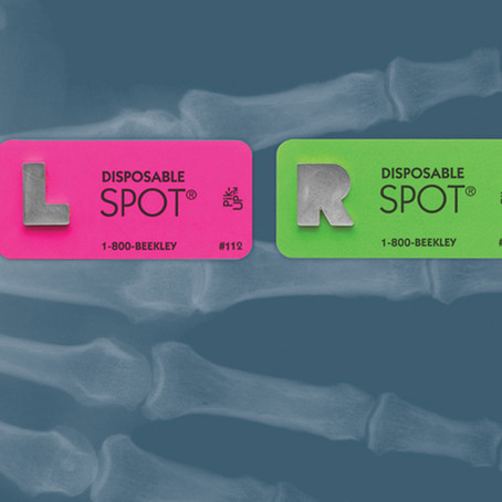 Resourceful radiology department repurpose Beekley orientation markers during Covid-19 pandemic