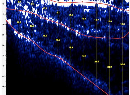 Adipometria Stratigrafica, L'Ecografia del  Nutrizionista