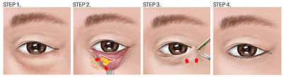 under eye.jpg