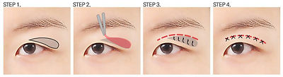 upper eye.jpg