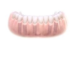 Замена зубов Петрозаводск сьемным протезом Импалнты зубов за 1 день Ортодент