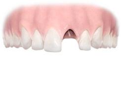 Замена зубов Петрозаводск протезом Импалнтами зубов за 1 день Ортодент