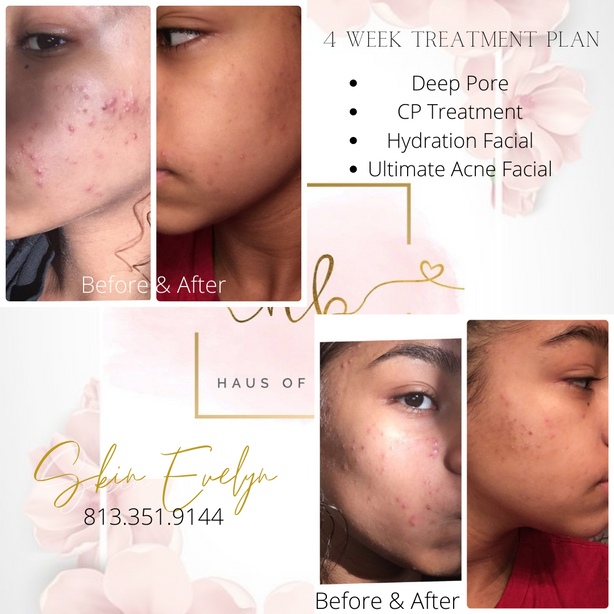 4 week treatment plan