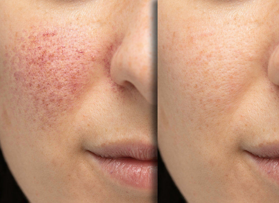 Before%20and%20after%20laser%20treatment