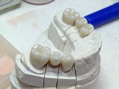 Zirconia Bridges
