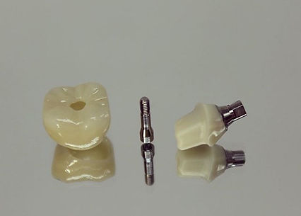 Screw retained implant over custom abutment