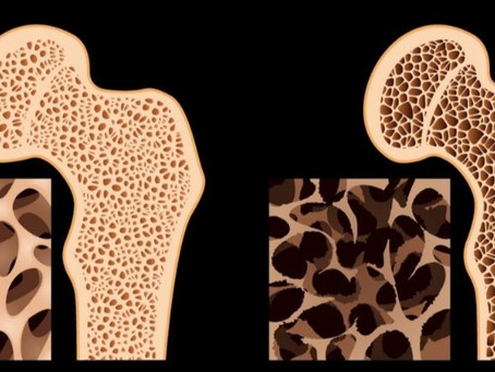 A OSTEOPOROSE E AS FRATURAS                        Conheça os riscos e previna-se