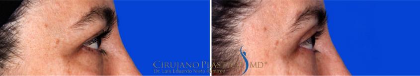 blefaroplastia, ojeras, cirugía de párpado