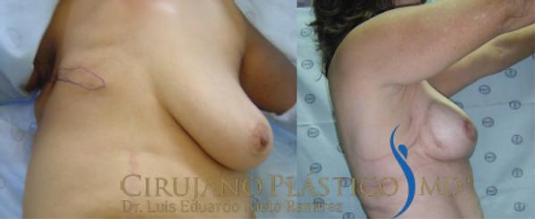 reconstrucción seno tardía.png