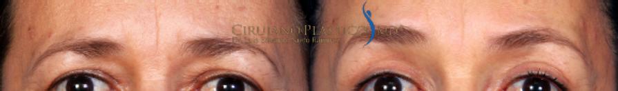 cejas, cirugía de párpados, frontoplastia, rejuvencimento