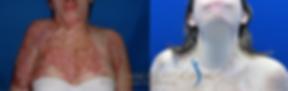 Secuelas de quemaduras en cuello.png