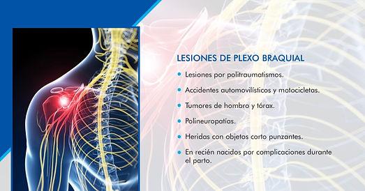 LESIONES DE PLEXO BRAQUIAL.jpg