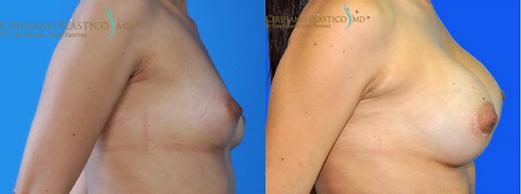 Mamoplastia de aumento, Implantes mamarios, Seno, Mamoplastia