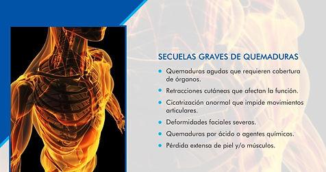 SECUELAS GRAVES DE QUEMADURAS.jpg