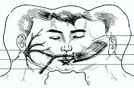 paralisis facial.png
