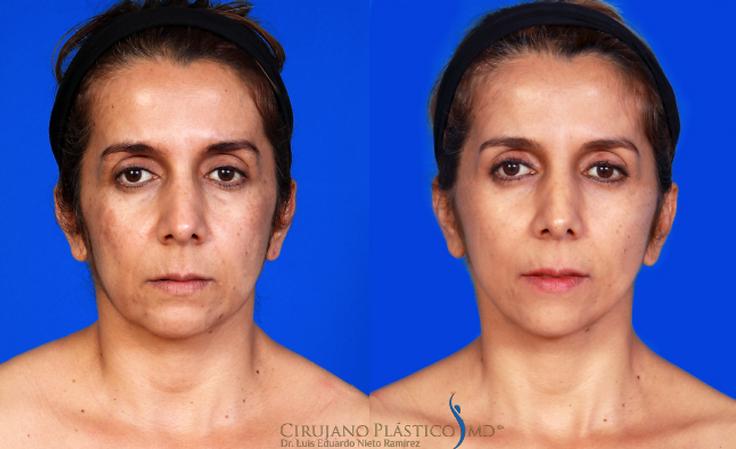 ritidoplastia, estiramiento facial, rejuvenecimiento facial, ritidectomía
