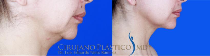 cirugía de cuello, cervicoplastia, papada, rejuvenecimiento facial