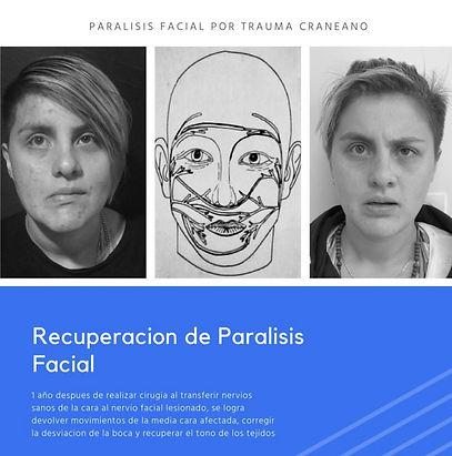RECUPERACIÓN PARÁLISIS FACIAL.jpg