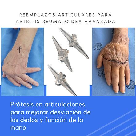 ARTRITIS REUMATOIDEA EN MANOS.PNG