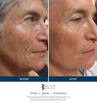 Skin-Pen-b-a-slide22-deep-wrinkles-face.