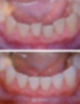 schiefe Zähne vorher – nachher