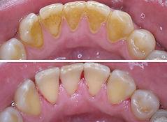 Professionelle Zahnreinigung vorher – nachher