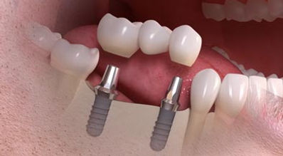 dental-implant-bridge-video.jpg