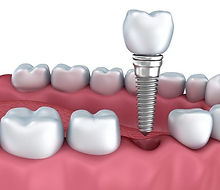 dental-implant-antibacterial-2.jpg