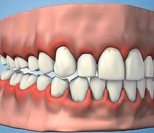 periodontoloji-1.jpg