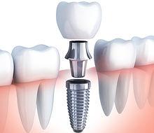 karaahmetoglu-dental-implant-tedavisi.jp