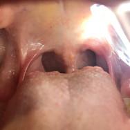 throat_scope_gallery_7-min.jpg