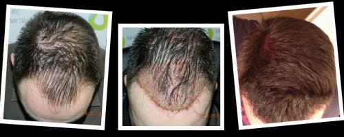 Dr. Michalis Georgiou Hair Transplantation Results