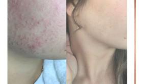 8 Week Skin Transformation
